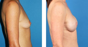 54 Year Old Woman, Cassileth One-Stage Breast Reconstruction after 1039907