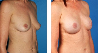 54 Year Old Woman, Cassileth One-Stage Breast Reconstruction 1039907