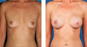 54 Year Old Woman, Cassileth One-Stage Breast Reconstruction before 1039907