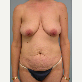 45 year old mother of 3 woman treated with Mommy Makeover before 3201359