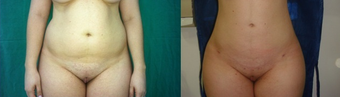 Liposuction on abdomen, flanks and back before 1105829