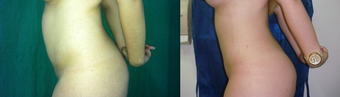Liposuction on abdomen, flanks and back after 1105829