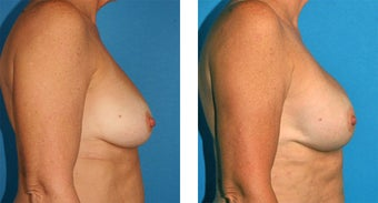 Breast Reconstruction: One-Stage Breast Reconstruction after 561803