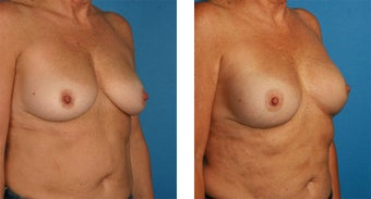 Breast Reconstruction: One-Stage Breast Reconstruction 561803
