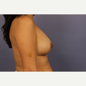 35-44 year old woman treated with Breast Lift with Implants after 3110597