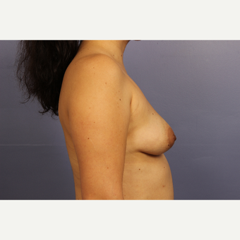 35-44 year old woman treated with Breast Lift with Implants before 3110597