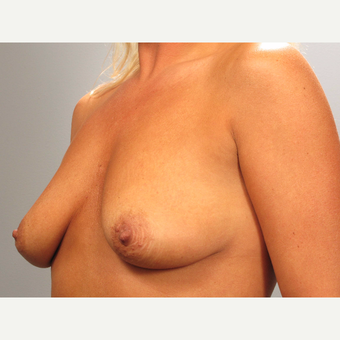 35-44 year old woman treated with Breast Lift with Implants before 3493199