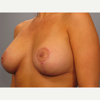 35-44 year old woman treated with Breast Lift with Implants after 3493199