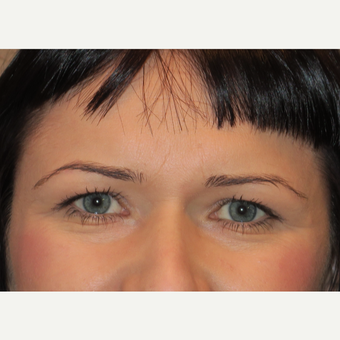 35-44 year old woman treated with Eyelid Surgery before 3385001