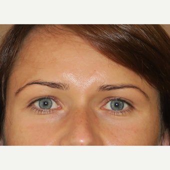 35-44 year old woman treated with Eyelid Surgery after 3385001