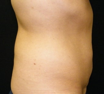 CoolSculpting 965303