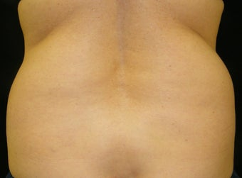 CoolSculpting before 965303