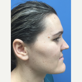 35-44 year old woman treated with Rhinoplasty before 3324764