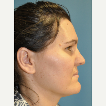 35-44 year old woman treated with Rhinoplasty after 3324764