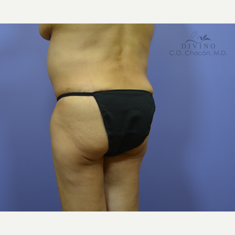 55-64 year old woman treated with Liposuction after 3391706