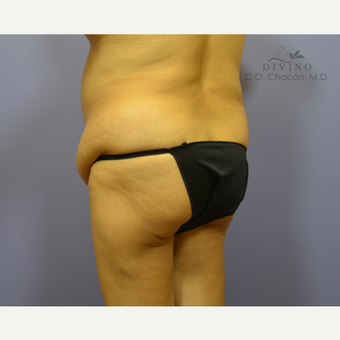 55-64 year old woman treated with Liposuction before 3391706