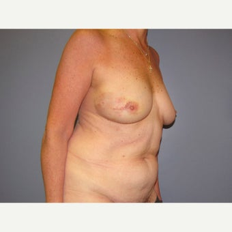 71 year old woman treated with Breast Reconstruction with a DIEP flap before 2550468