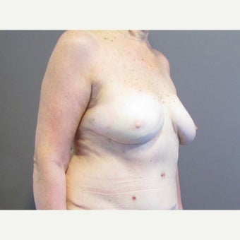 71 year old woman treated with Breast Reconstruction with a DIEP flap after 2550468
