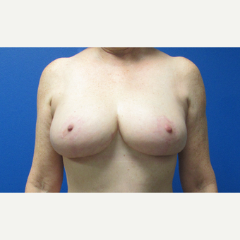 Breast Reduction after 3703777