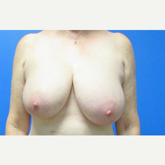 Breast Reduction before 3703777