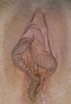 Labiaplasty (Labia Minora Reduction), Patient #5
