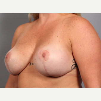 35-44 year old woman treated with Breast Lift with Implants after 3588532
