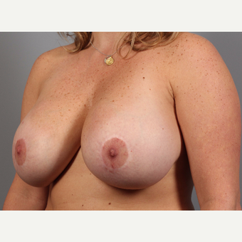 35-44 year old woman treated with Breast Lift with Implants before 3588532