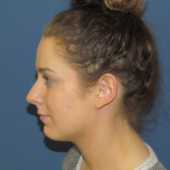 18-24 year old woman treated with Rhinoplasty after 2264986