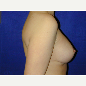 25-34 year old woman treated with Breast Lift with Implants after 3766236