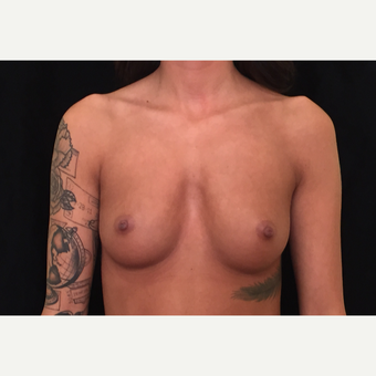 18-24 year old woman treated with Breast Augmentation before 3419120
