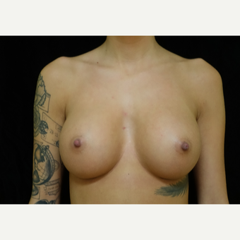 18-24 year old woman treated with Breast Augmentation after 3419120