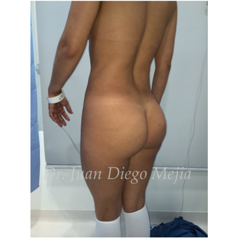 25-34 year old woman treated with Butt Implants before 2692723