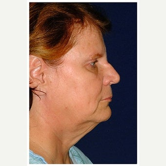 55-64 year old woman treated with SMAS Facelift before 1550670