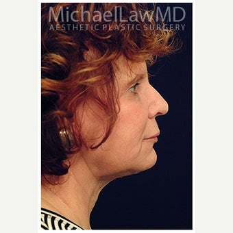 55-64 year old woman treated with SMAS Facelift after 1550670
