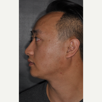 35-44 year old man treated with Septoplasty 8 months post-op after 3500039
