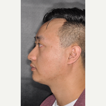 35-44 year old man treated with Septoplasty 8 months post-op before 3500039