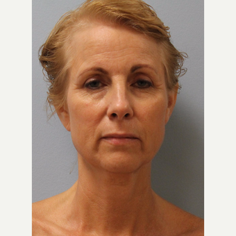 65-74 year old woman treated with Facelift before 3615741