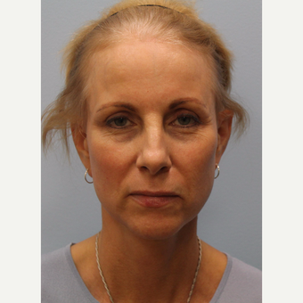 65-74 year old woman treated with Facelift after 3615741