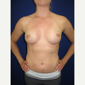 25-34 year old woman treated with Breast Reconstruction after 3434956