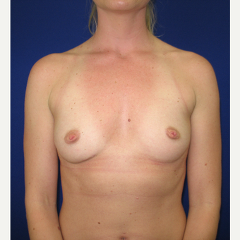 25-34 year old woman treated with Breast Reconstruction before 3434956