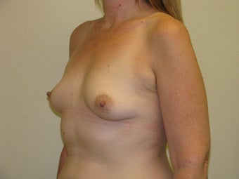 35 year old female with 450 cc Silicone Gel implants before 1092645