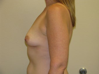 35 year old female with 450 cc Silicone Gel implants 1092645