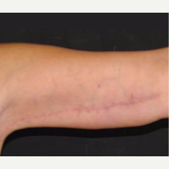 45-54 year old woman treated with Arm Lift after 3282666