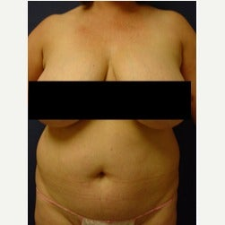 45-54 year old woman treated with Mini Tummy Tuck before 2058550