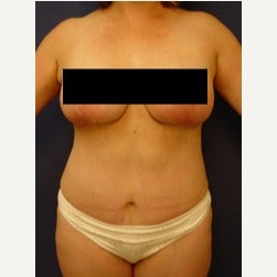 45-54 year old woman treated with Mini Tummy Tuck after 2058550