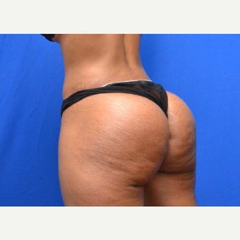 35-44 year old woman treated with Butt Implants after 1854266
