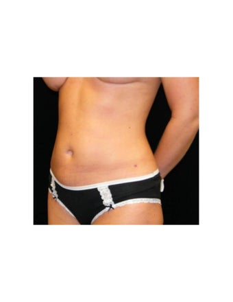Mini Tummy Tuck on Female Patient 925735