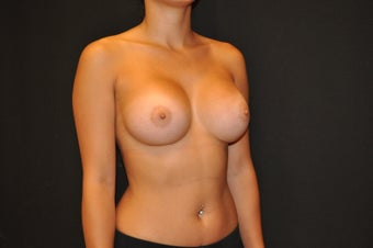 "24 y/o, 5' 2"", 112 pounds, silicone, 425cc right, 400cc left, dual plane placement, IMF incision, 9 months post-op 1225669"