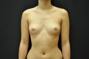 "24 y/o, 5' 2"", 112 pounds, silicone, 425cc right, 400cc left, dual plane placement, IMF incision, 9 months post-op before 1225669"