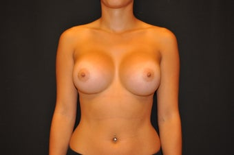 "24 y/o, 5' 2"", 112 pounds, silicone, 425cc right, 400cc left, dual plane placement, IMF incision, 9 months post-op after 1225669"